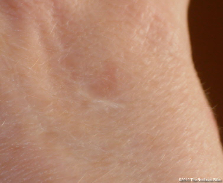 small white scar on hand 3