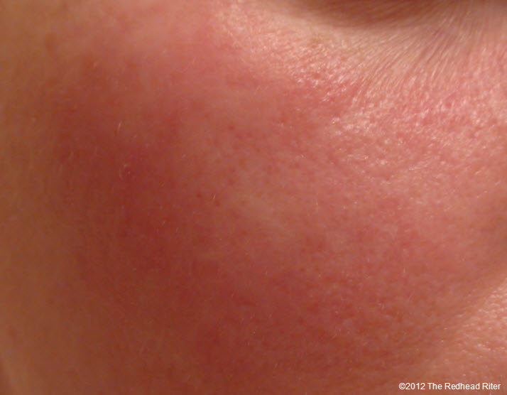 Grain Allergy Swollen Face Rash Bumps