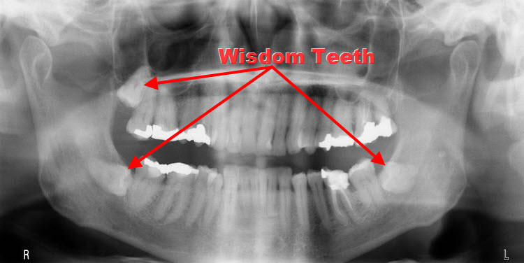 wisdom teeth full mouth dental xray